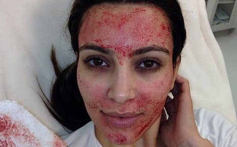 Le soin du visage (au sang) de Kim Kardashian!